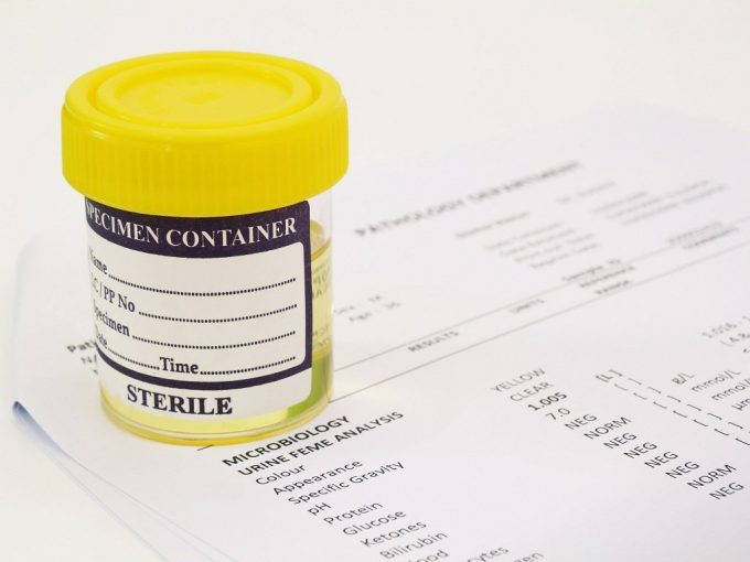 Эритроциты, белок, лейкоциты в моче – что это значит?