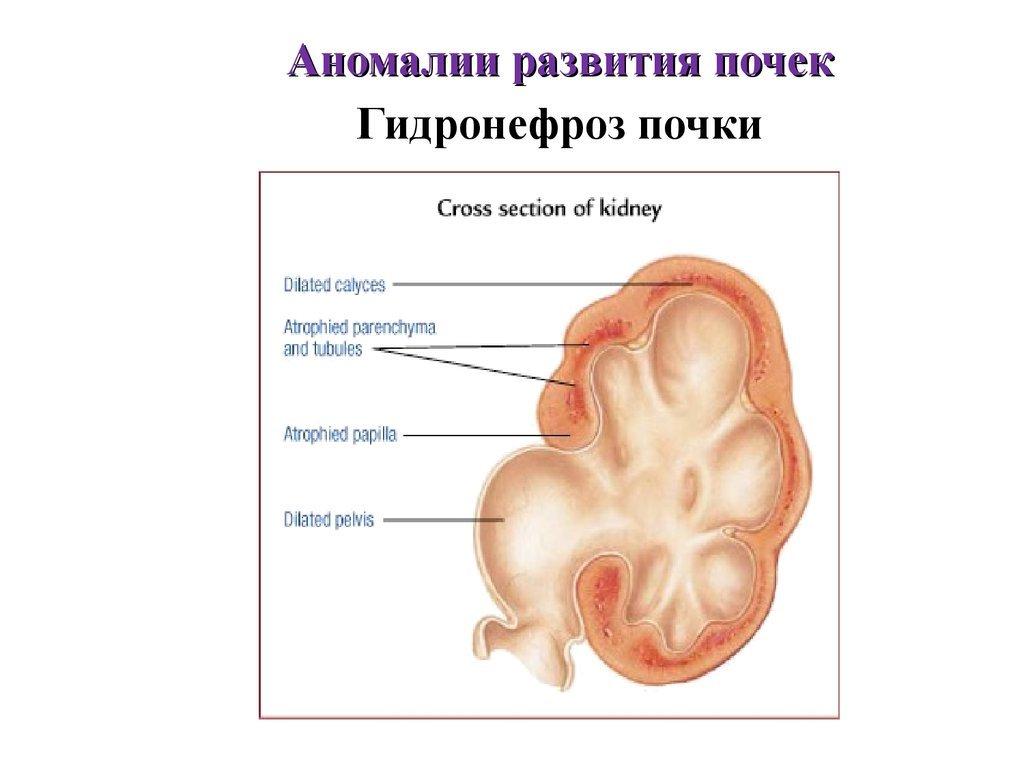 Беременность и гидронефроз почки